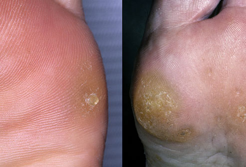 Conditions Gpc Foot Clinic